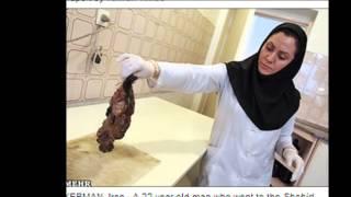 getlinkyoutube.com-【閲覧注意】男性の腹の中に人間が、、、その驚愕の正体とは!?!?