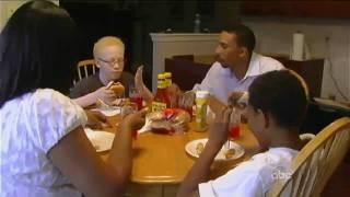 getlinkyoutube.com-Albinism: Caught Between Dark and Light