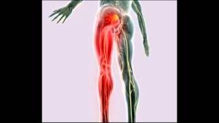 getlinkyoutube.com-Remedios naturales para aliviar el dolor de ciática