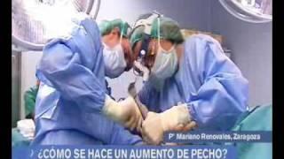 getlinkyoutube.com-Aragón en abierto 141209 CLÍNICA QUIRON AUMENTO DE PECHO.wmv