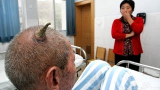 Cutaneous Horns - Rare Medical Conditions