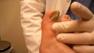 getlinkyoutube.com-Toenail removal