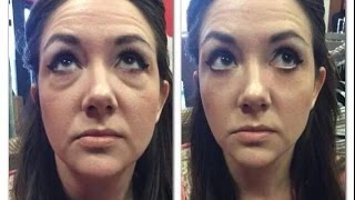 getlinkyoutube.com-Instantly Ageless Review YouTube Calls It Facelift In A Bottle by Jeunesse