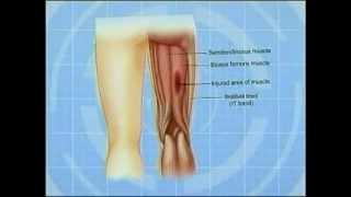 getlinkyoutube.com-Understanding and treating hamstring injuries