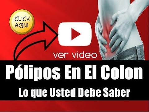 Polipos En El Colon | Video 1/2