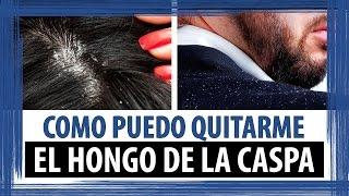 getlinkyoutube.com-COMO PUEDO QUITARME EL HONGO DE LA CASPA | COMO QUITARSE LA CASPA