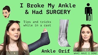 MY STORY | Broken Ankle & Ankle Orif Surgery - Q&A