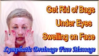getlinkyoutube.com-Swelling on Face and How to Get Rid of Bags Under Your Eyes at Home