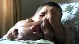 getlinkyoutube.com-20 kilo tumor, removed from mans face, new world record.