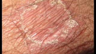 getlinkyoutube.com-RING WORM TREATMENT SHOWING ALL HEALING STAGES.wmv