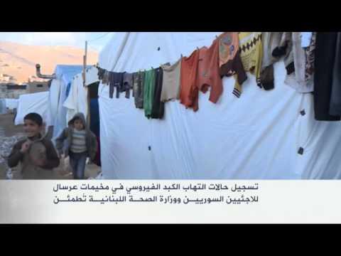 حالات التهاب الكبد الفيروسي في مخيمات عرسال للاجئين
