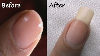 getlinkyoutube.com-How to Grow Nails Faster Naturally? - SuperWowStyle