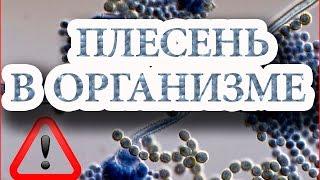 getlinkyoutube.com-Плесень в организме и действие соды  - Огулов А Т