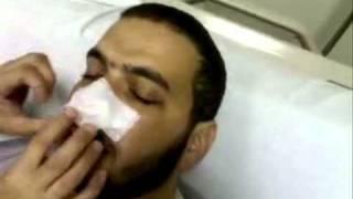 getlinkyoutube.com-مقطع فيديو لإبراهيم السيلاوي من داخل مشفى عبيد بالريآض