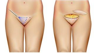 getlinkyoutube.com-Monte de Venus, Cirurgia Intima. Dr André Colaneri explica