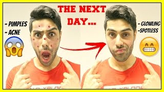 How To Get Rid Of Pimples OVERNIGHT - GET RID OF ACNE FAST!!