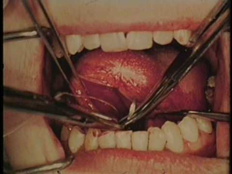 SURGICAL EXCISION OF EPIDERMOID CYST FROM FLOOR OF MOUTH