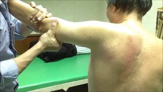 getlinkyoutube.com-ข้อไหล่ติด หมอไทยรักษาได้ใน 10 นาที (Frozen Shoulder)
