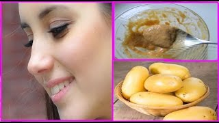 getlinkyoutube.com-Potato Mask to Get CLEAR SKIN, SPOTLESS SKIN, FAIR SKIN, GLOWING SKIN in just 7 days-100% Results