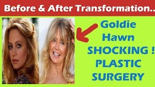 getlinkyoutube.com-Goldie Hawn Plastic Surgery Before and After