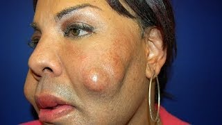 getlinkyoutube.com-Cosmetic Surgery Disaster: Woman Dubbed 'Cement Face' Given New Lease Of Life
