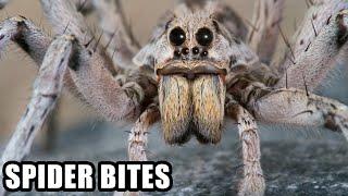 getlinkyoutube.com-World's Worst Spider Bites; Plus, Spider Vs Snake!