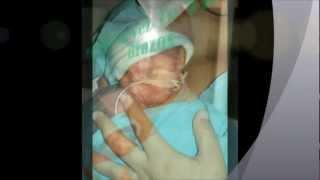 getlinkyoutube.com-Historia de gemelos prematuros extremos de 26 semanas...Dani y Carlitos