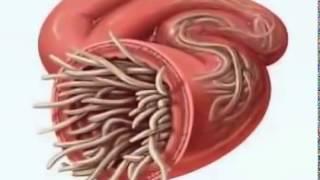 getlinkyoutube.com-Parasite Cleanse  - Apa memakan Anda?