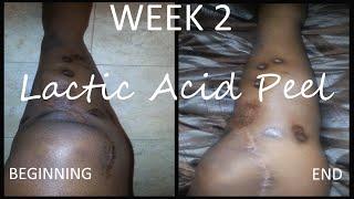 getlinkyoutube.com-Lactic Acid:Fading Surgery Scars   Week 2   Demo + Result Pics