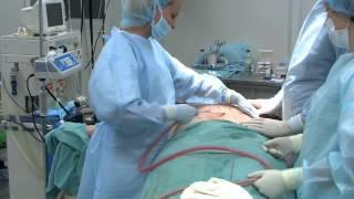 Операции по коррекции фигуры совместно с брахиопластикой