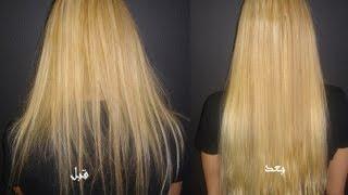 getlinkyoutube.com-طريقة سهلة لتطويل ومنع تساقط الشعر والحصول على شعر صحي وجميل