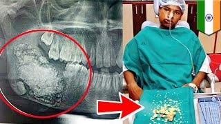 getlinkyoutube.com-Dentyści usuwają chłopcu 232 zęby.
