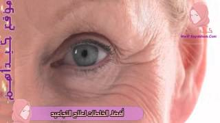 getlinkyoutube.com-افضل خلطة لشد الوجه ومحاربة التجاعيد   أفضل الخلطات لعلاج التجاعيد - كيداهم HD