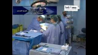 getlinkyoutube.com-مستشفى أدمة / عملية شفط الدهون وشد البطن