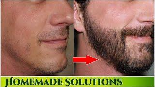 घनी दाढ़ी और मूंछ उगाने के सबसे असरदार उपाय   Fix  Patchy Beard Permanently in 7 days & Grow Faster width=
