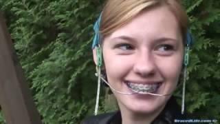 getlinkyoutube.com-Orthodontic Headgear