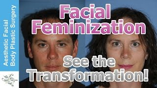 getlinkyoutube.com-Transgender Facial Feminization FFS, MTF, M2F Plastic Surgery Video by Seattle Bellevue's Dr. Young
