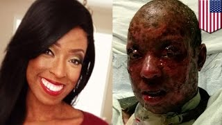 getlinkyoutube.com-충격적인 알르레기 반응: 한 여성이 조울증 약 복용 후, 피부가 벗겨져