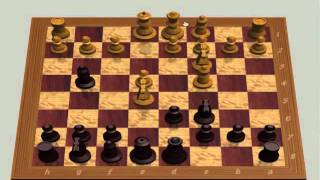 getlinkyoutube.com-How To- Beat Someone In Chess With 7 Moves Queen's Sacrifice