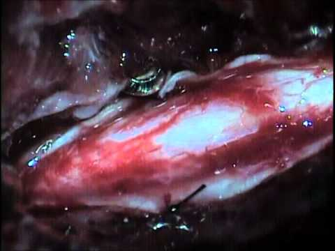 Arachnoid Diverticulum (Cyst) Marsupialization and Spinal Stabilization