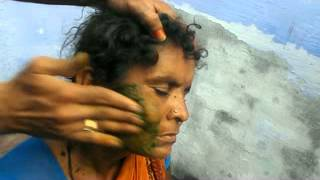 getlinkyoutube.com-Face Skin Worm Remove - Sathuragiri Herbals