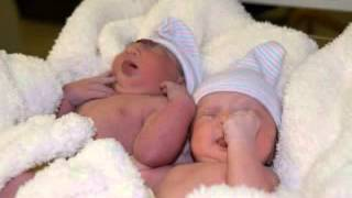 my twins (anencephaly awareness)