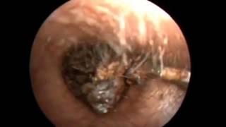 Le extraen 26 crias de cucaracha del oído