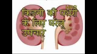 getlinkyoutube.com-Kidney Stone ( Gurde Ki Pathri ) Ka Gharelu Upchar