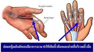 นิ้วล็อค โรคเอ็นนิ้วมือยึด ปลอกหุ้มเอ็นนิ้วมืออักเสบ พังพืดที่นิ้ว เหยียดนิ้วมือไม่ได้