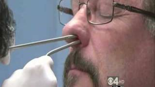 getlinkyoutube.com-Balloon Sinuplasty Provides Quick and Easy Relief to Chronic Sinusitis Sufferers