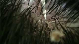 getlinkyoutube.com-【フケpart6】フケの収穫とマイクロレンズでじっくり観察I peeled off the dandruff.