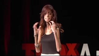 How do you define yourself? | Lizzie Velasquez | TEDxAustinWomen