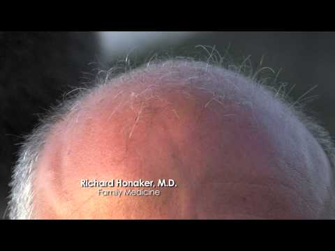Hair Loss Treatment Medical Minute with Dr. Richard Honaker