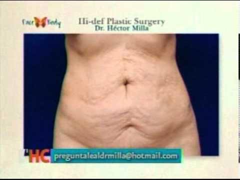 DR. HECTOR MILLA ESTRIAS EN ABDOMEN.mpg